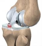 legamento ginocchio